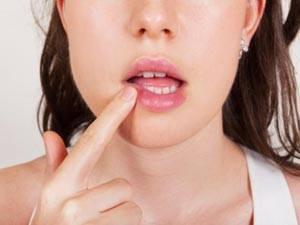 Герпес на губах при беременности