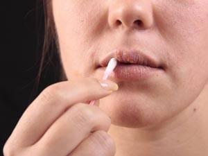Лечение герпеса на губах при беременности