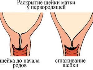 Шейка матки перед родами