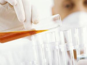 Лейкоциты в общем анализе мочи
