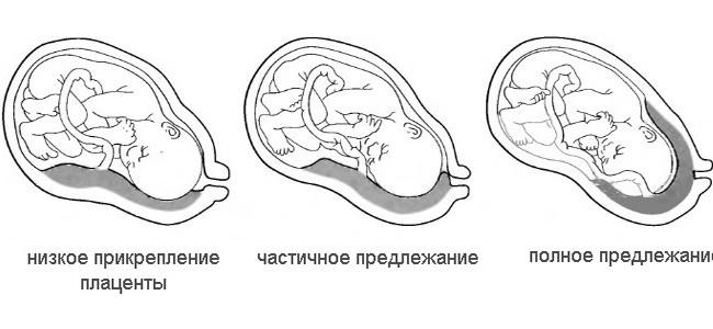 Типы предлежания плаценты