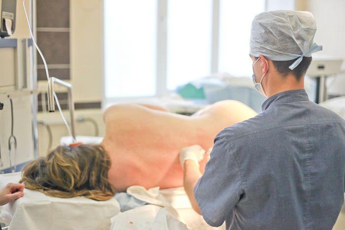 Кесарево с использованием эпидуральной анестезии