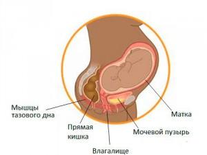 Почему возникает недержание мочи при беременности и что с этим делать?