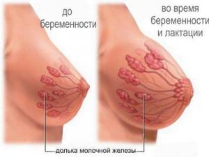 Боли в груди в начале беременности